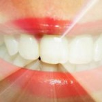 Вред и причины изминения цвета зубов
