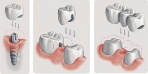 Когда необходимо заменить зуб коронкой?
