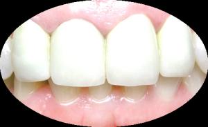 Протезирование зубов с помощью металлокерамики