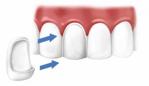 Виниры на зубы - эстетическое протезирование