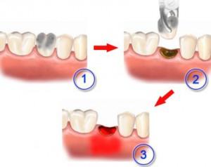 Осложнения после удаления зубов