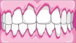 Гингивопластика в стоматологии