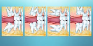 Общие осложнения после удаления зубов мудрости