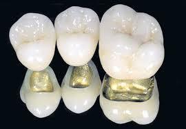 Цена установки коронки на зубы