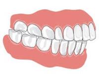 Окклюзия зубов и особенности улыбки