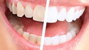 Как происходит отбеливание зубов капами?