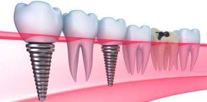 Путь к идеальной имплантации зубов