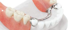 Протезирование зубов с помощью бюгеля