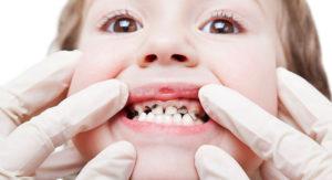 Что будет, если не лечить зубы у детей?