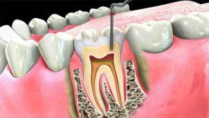 Этапы эндодонтического лечения зубов