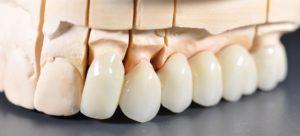 Безметалловые конструкции в полости рта
