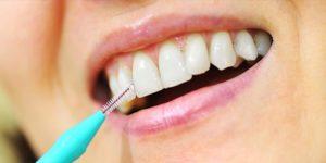 Ершики для зубов