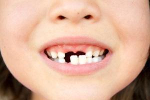 Молочные зубы и кариес у детей