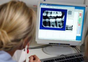 Стоматологический рентген во время беременности