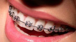 Брекеты - украшения для зубов