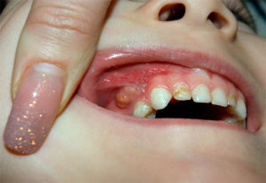Про зубной флюс