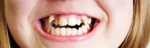 Что делать если у ребенка неровные зубы?
