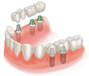 Ортопедия и протезирование зубов