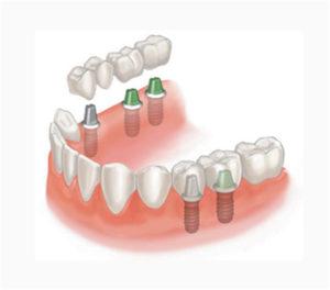 Съемное и несъемное протезирование зубов