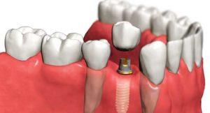 Как выбрать зубной имплант?