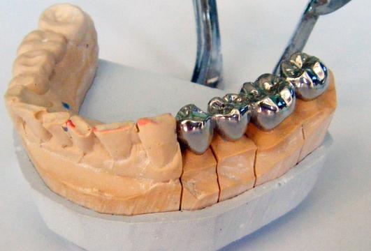 Протезирование зубов металлическими коронками